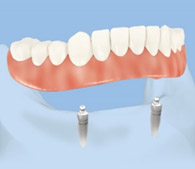 2 implants dentaires