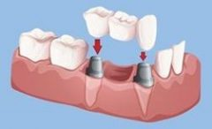 Placement of a bridge on two implants